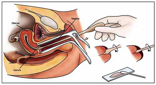 Pap smear test solutioingenieria Choice Image